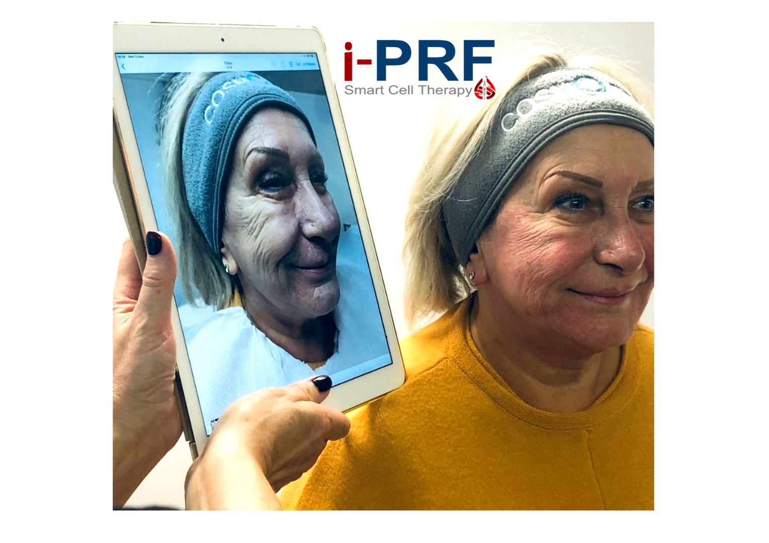 iPRF Facial Rejuvenation RT.png