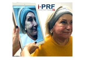 iPRF Facial Rejuvenation RT.png