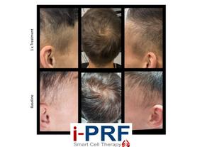 iPRF Hair .png