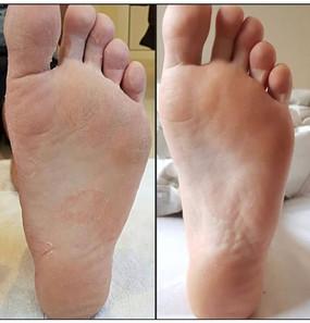 Biorepeel foot peel .jpg
