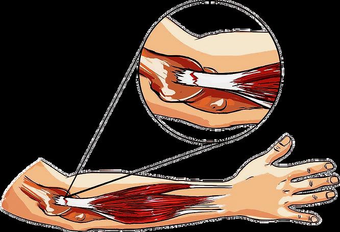 tenisci dirsegi, lateral epikondilit, ortopedi bakırköy, dr cevdet avkan, omurga cerrahisi istanbul