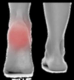 topuk ağrı, topuk dikeni, epin calcanei, bakırköy, ortopedi, cevdet avkan, omurga cerrahisi istanbul