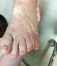 orthoplastie appareillage orteil