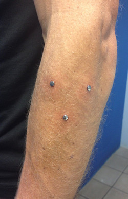 microdermals with discs