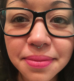 septum with BCR