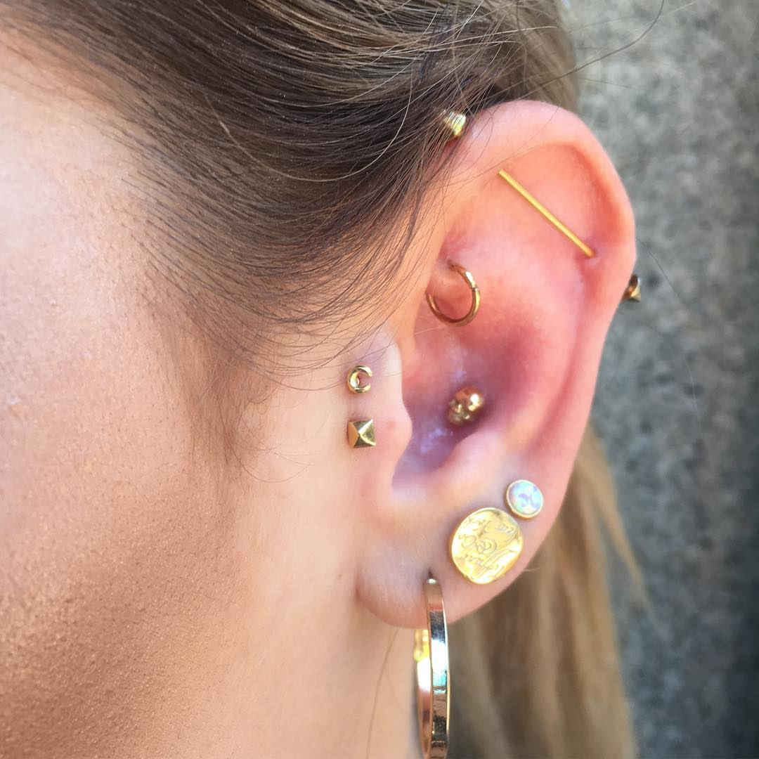 Double tragus with danila tarcianale sol