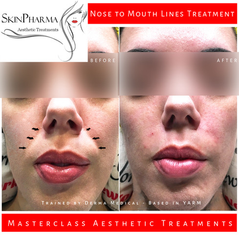 Nose to mouth lines treatment