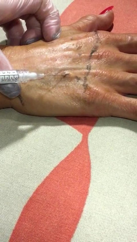 This video shows some of the training we carried out to provide a hand rejuvenation treatment using dermal fillers. This newer treatment can help to minimise volume loss & can reduce the look of 'skeleton hands'.