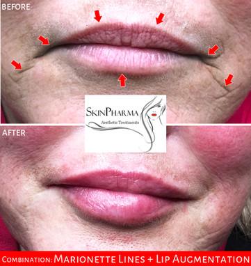 Combination: marionette lines & lip augmentation