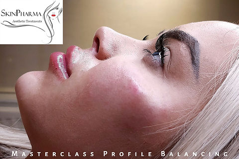 Cheek augmentation (1ml)