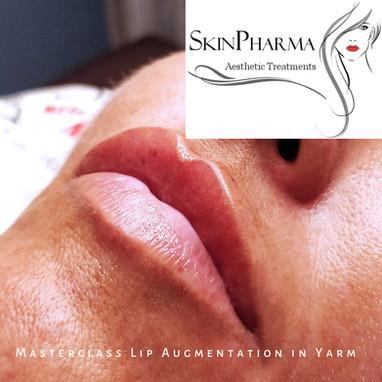 Stepwise lip augmentation