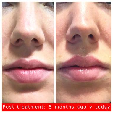 Lip volumisation