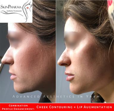 Combination: cheek lift & lip augmentation