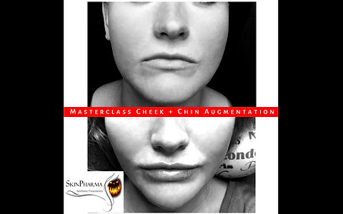 Cheek & chin augmentation (1ml)