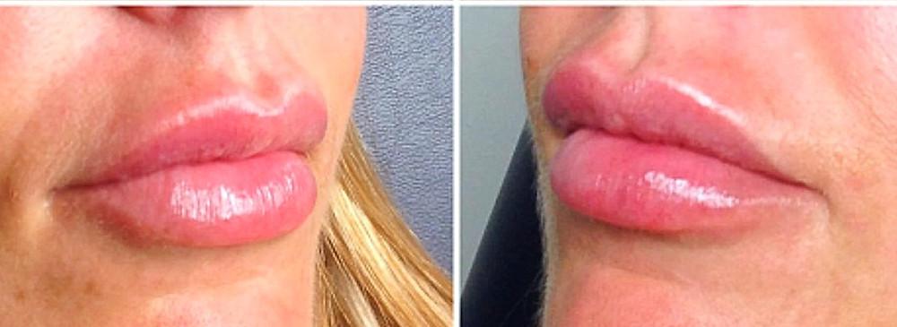 Skinpharma Aesthetics: Masterclass lip treatments