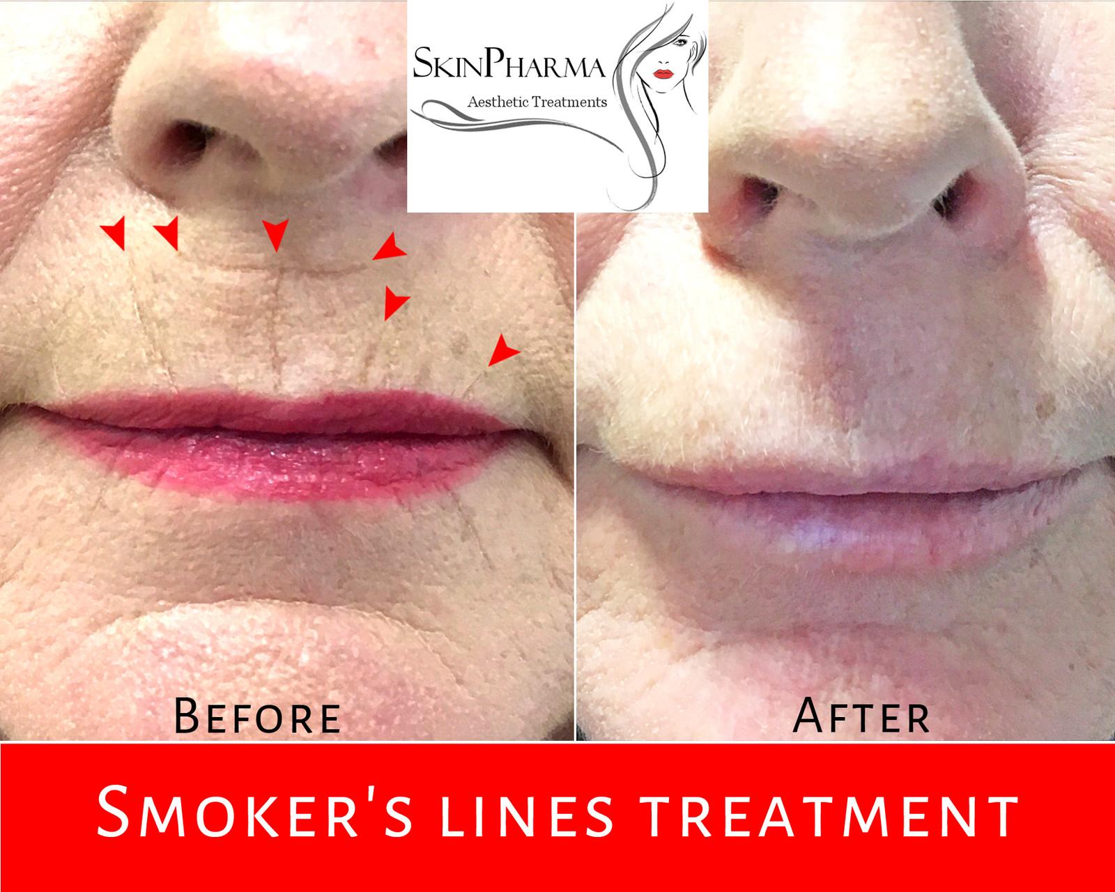 Smoker's lines treatment