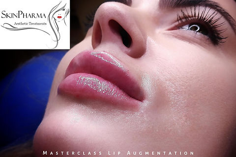 Masterclass lip augmentation (1ml)