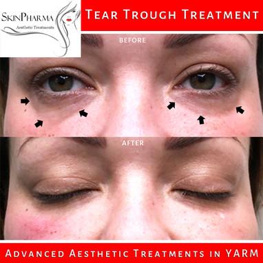 Tear trough treatment
