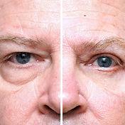 Upper Eyelid Skin Tightening