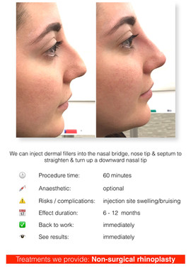 Non-surgical rhinoplasty (nose re-shaping)