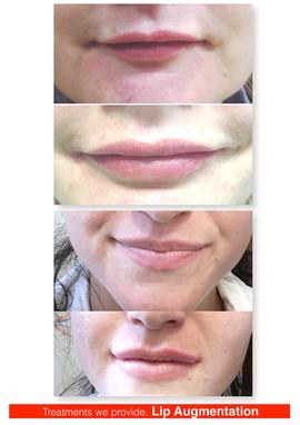 Lip shaping & volumisation