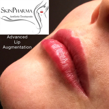 Masterclass lip treatment