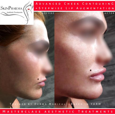 Cheek lift & stepwise lip augmentation