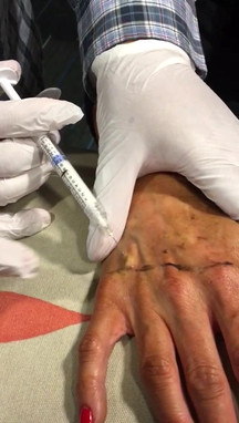 Training January'17: Hand rejuvenation