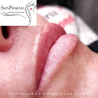 Lip augmentation: stepwise treatment