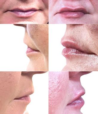 Lip shaping