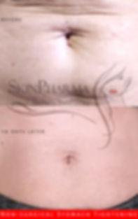 Liz stomach.jpg