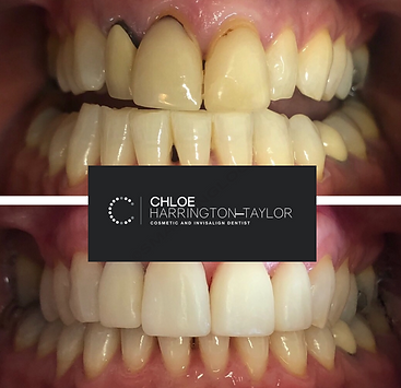 Invisalign tooth whitening bonding
