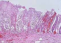 Damaged intestine.jpg
