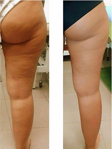 cellulite-before-after.jpg