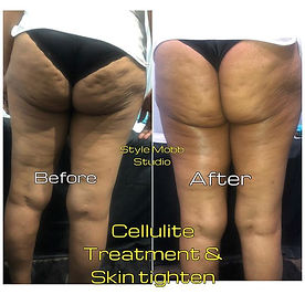 Skin tightening and Cellulite treatment.