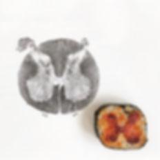Sushi Science | Janelle Letzen | Spinal Cord