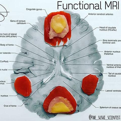 Sushi Science | Janelle Letzen | fMRI