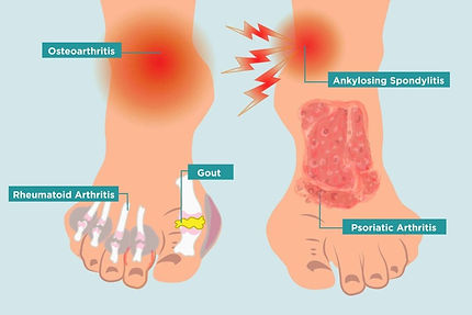 arthritis ankle.jpg