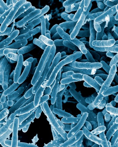 Scanning electron micrograph of Mycobacterium. Courtesy of National Institutes of Health.