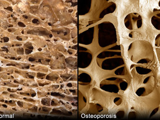 How To Avoid Osteopenia & Osteoporosis