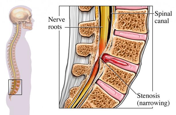 SpinalStenosis.jpg