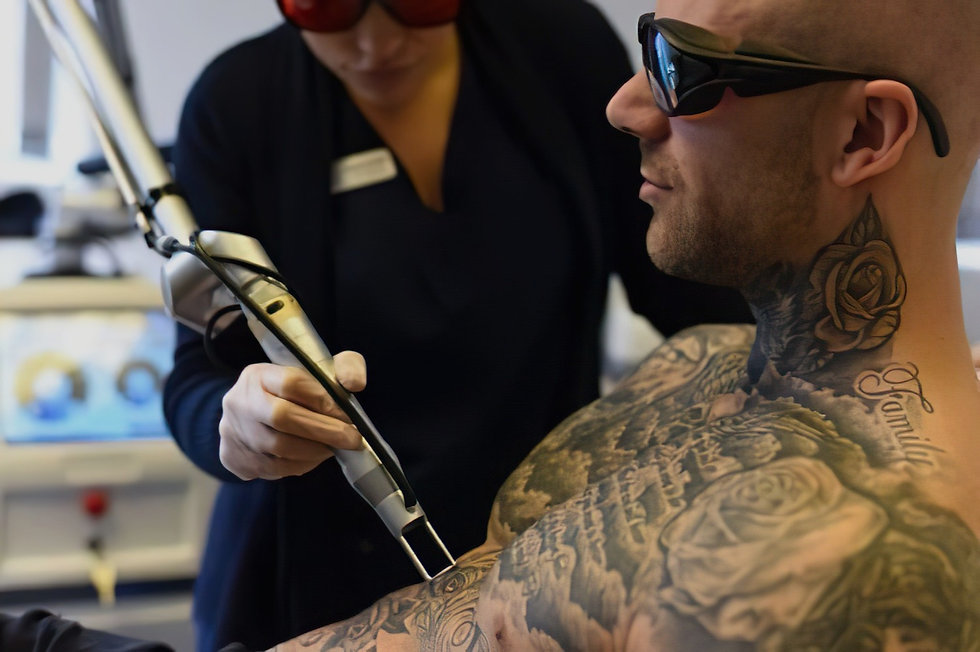 Welcome to Oldham Tattoo Removal at Simply Skin Laser Clinic