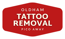 Oldham Tattoo Removal