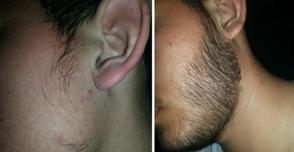 Resultados obtenidos con Minoxidil para la barba