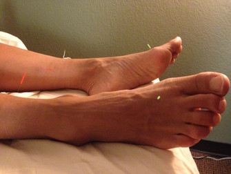 Acupuncture Beats Drugs For Menstrual Pain Relief