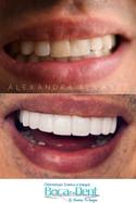Diseño de Sonrisa realizado con Lentes Cerámicos.