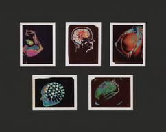 Howard Sochurek Medical Images I