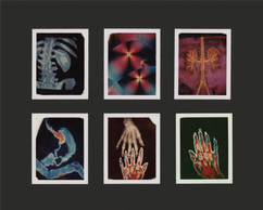 Howard Sochurek Medical Images III