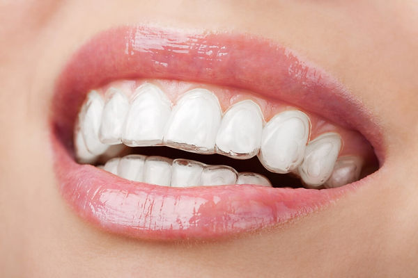 invisalign-dentist-warren-min.jpg