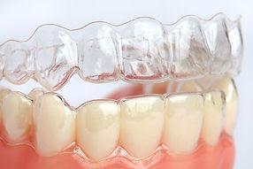 Invisalign clear braces dentist in Warre
